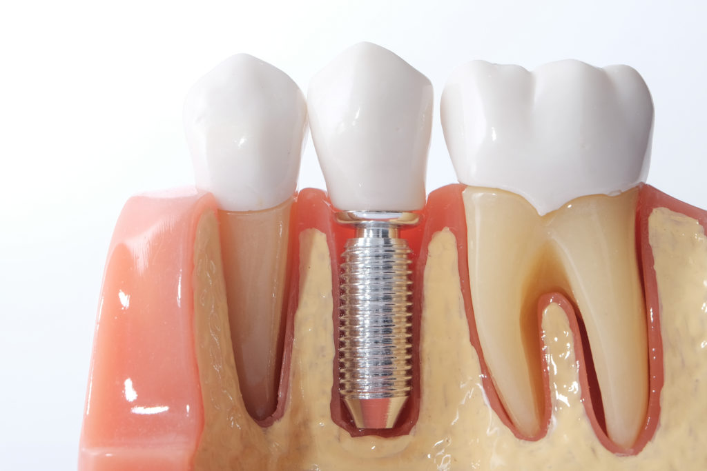 dental implants-2