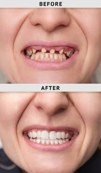 Dental Implants Riversdale Dental
